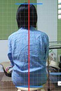 川村さん座位背面施術前