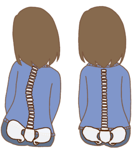 背骨の歪みイラスト