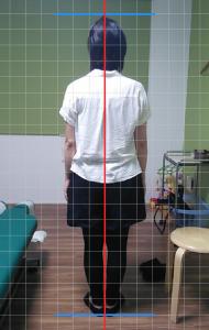 川村さん立位背面施術後